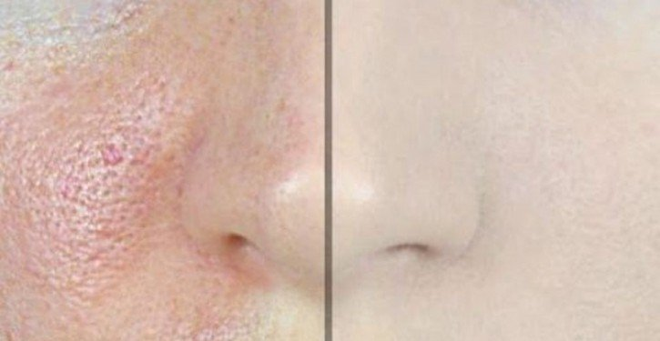 how-to-Remove-Large-Pores