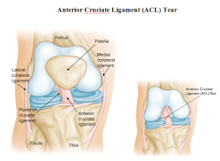 Anterior Cruciate Ligament (ACL) Tear