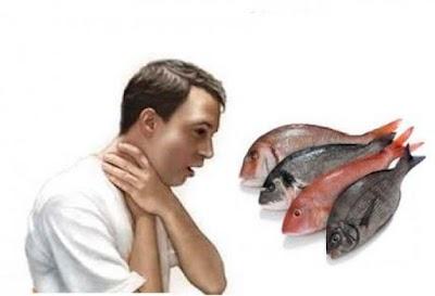 شوك السمك