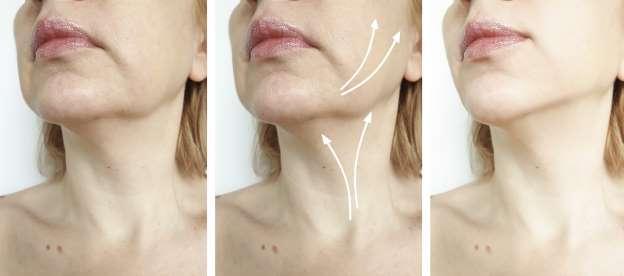 Dites adieu à la flaccidité du visage avec un seul ingrédient, mieux que les injections