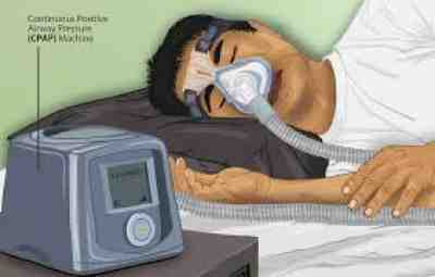 CPAP Device - 10 Common CPAP Side Effects