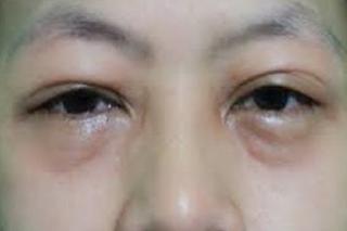 4 Cara Menghilangkan Mata Bengkak Habis Menangis Dengan Cepat