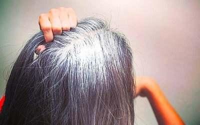 علاج الشعر الابيض الشيب طبيعيا