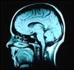 Importante descubrimiento relacionado con la esquizofrenia