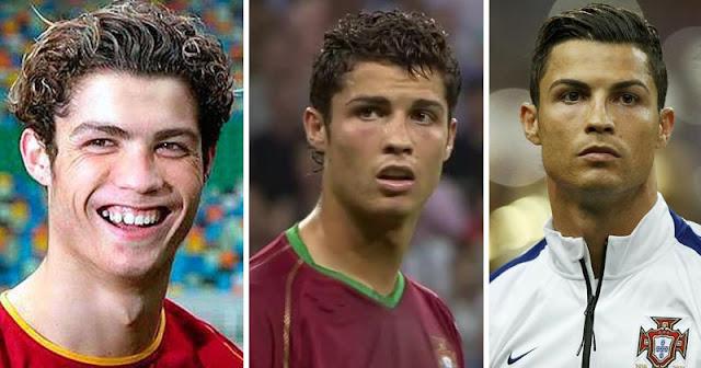 Cirugías Cristiano Ronaldo