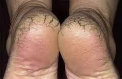 atasi tumit pecah, tips atasi tumit merekah, tips atasi kulit kering, kulit kering, tumit kaki pecah