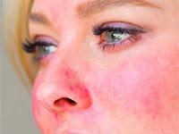 Kenali bahaya dan tanda-tanda penyakit rosacea