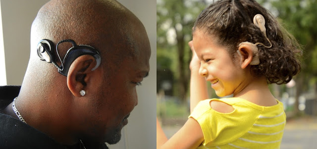 Cochlear Implant Surgery in India
