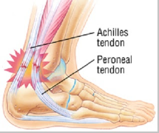 Tendonitis (peradangan tendon) - berbagaireviews.com