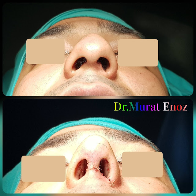 Thick Skinned Male Rhinoplasty Turkey, Nose Job For Men Istanbul