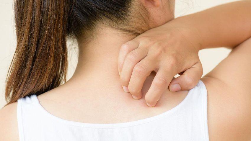 ilustrasi rasa gatal karena jamur di kulit