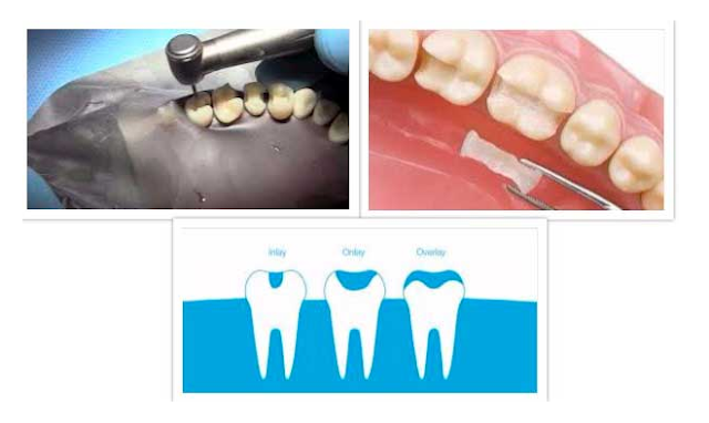 no abarca ninguna cúspide dental