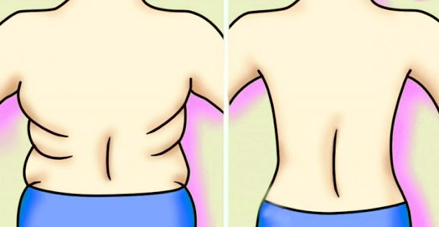 Get Rid Of Excess Fat On Your Back