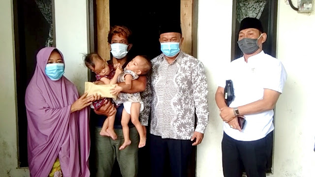 Bayi Kembar Siam di Lotim Butuh Dana Operasi, Dewan Berikan Bantuan