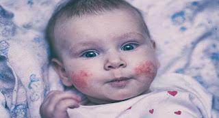 الامراض المعدية في سن الطفولة