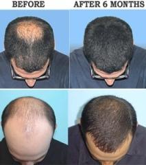 Provillus for Male Pattern Baldness