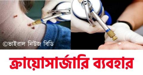 ক্রায়োসার্জারি কি ব্যাখ্যা কর। Explain cryosurgery.