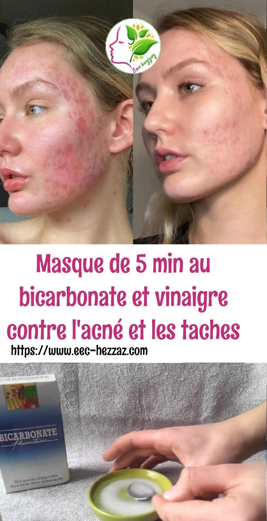 Masque de 5 min au bicarbonate et vinaigre contre l'acné et les taches
