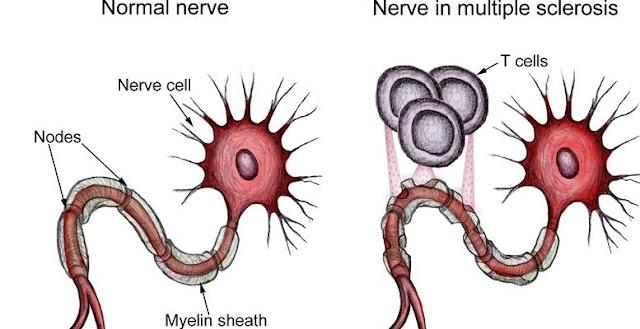 Macam-macam Penyakit dan Gangguan Sistem Peredaran Darah pada Manusia