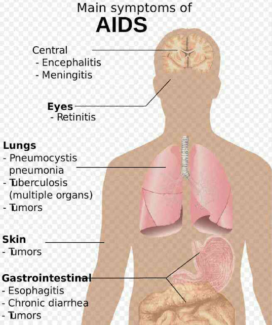 aids ka full form