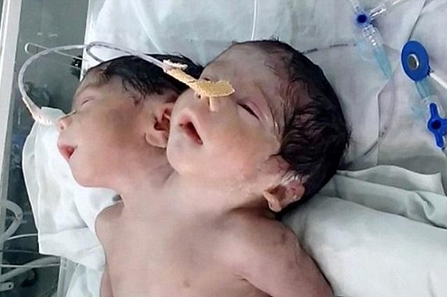 Bayi Berkepala 2 Meninggal Dunia Selepas 32 Jam Dilahirkan