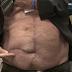 Bolsonaro mostra cicatriz de cirurgia na TV para dizer que facada não foi fake
