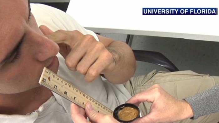 Peanut Butter Test to Detect Alzheimer's