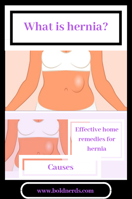 Effective Natural Home Remedies for Hernia
