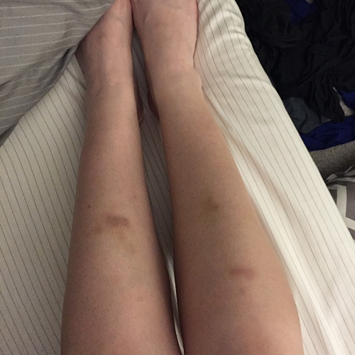 bruised shins