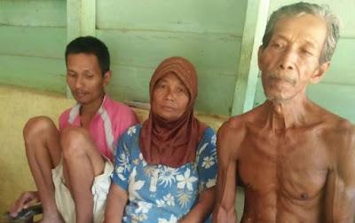 keluarga miskin yang anaknya sakit jiwa di Subulussalam ini tak dapat bantuan
