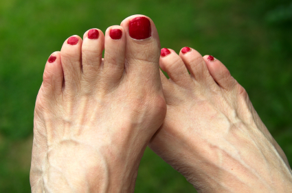 Feet with bunions, early stages