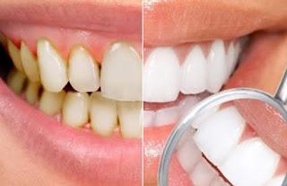 20 Cara Menghilangkan Karang Gigi dan Plak Yang Parah