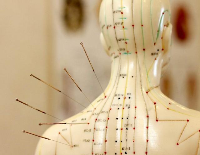 Cara Kerja Akupuntur
