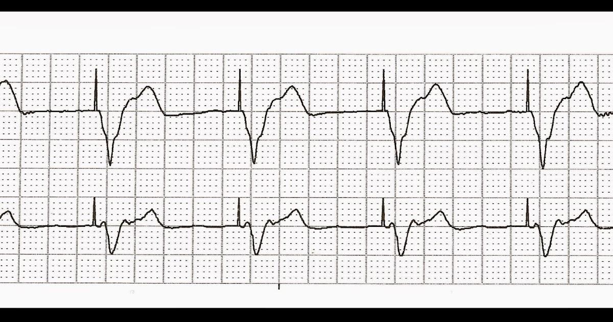 Float Nurse: Practice EKG Strips 414