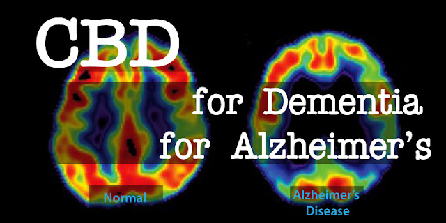 Alzheimer's & Dementia with the Help of CBD