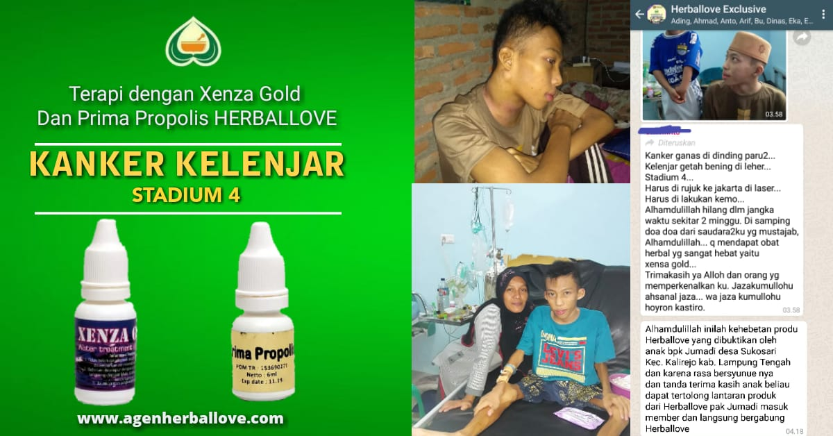 Kanker Kelenjar Getah Bening | Mengapa Harus Xenza Gold ...