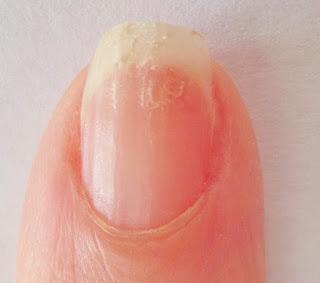 brittle nail