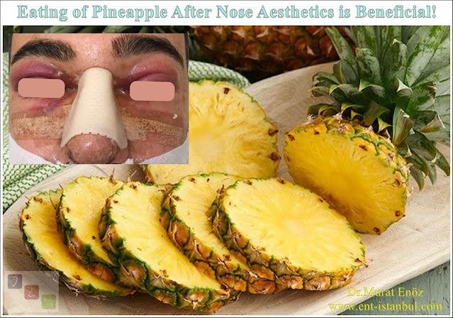 Bromelain, Pineapple, Pineapple, Swelling after Rhinoplasty, Edema, Vitamin C