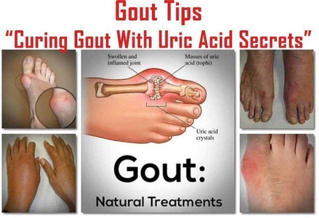 gout symptoms,gout causes,gout diet,gout treatment,gout medications,gout medicine,gout home remedy,gout remedy,gout natural remedy,gout remedy natural,gout home treatment,gout relief,gout pain relief,gout natural treatment,gout supplements,gout help,gout natural remedy fast