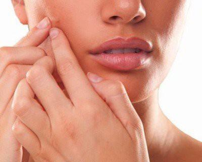 Skin Care Tips In Marathi For-चेहर्यावरील काळेपणा व डाग दूर करण्यासाठी-चेहरा गोरा होण्यासाठी उपाय