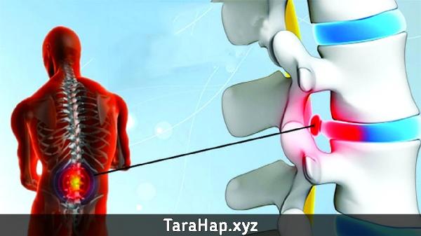 Risiko dan Kesan Pembedahan Slip Disk