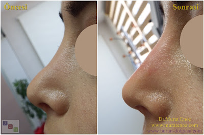Non-surgical nose job - Non surgical nose job with filler - Non-surgical rhinoplasty - Nose tip filler augmentation - Non-surgical rhinoplasty - Nose filler injection - Non-surgical nose job in Istanbul -  Non-surgical nose job istanbul -   Nose filler injection Turkey