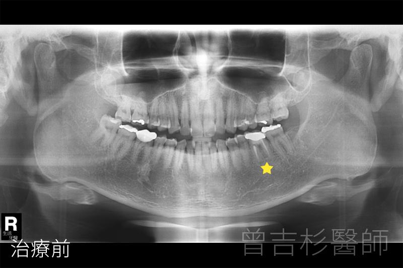 臺中植牙醫師|曾吉杉醫師的部落格|生活牙醫美學植牙中心: 臺中植牙推薦|下顎後牙單顆人工植牙暨補骨和 ...