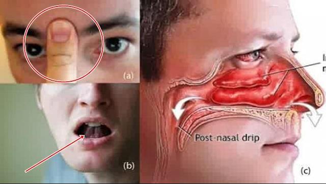 Cara Ampuh Mengobati Hidung Tersumbat Dengan Cepat