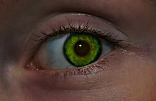 اسباب افرازات العين عند الاستيقاظ