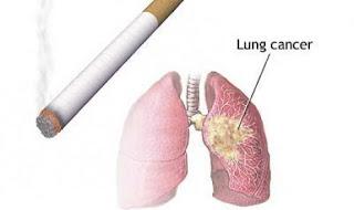 Image Obat Tradisional TBC Paru Paru Paling Ampuh dan Aman