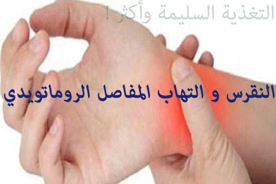 النقرس و التهاب المفاصل الروماتويدي ، اسبابه واعراضه وعلاجه بالتغذية السليمة