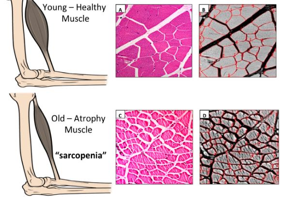 sarcopenia prevention how to fight muscle wasting prevent muscular atrophy