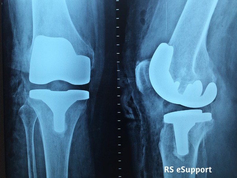 Orthopaedic Doctors