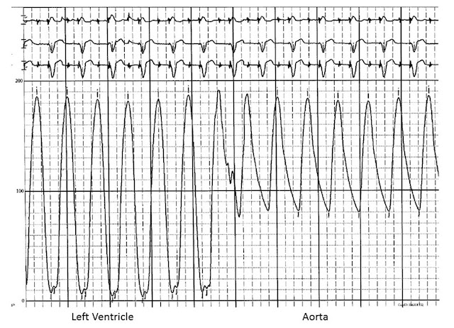 Pressure tracing during catheter pullback from the left ventricle to the aorta
